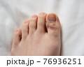 足の指にモノを落とした悲劇の二日後 76936251