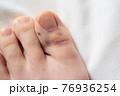 足の指にモノを落とした悲劇の二日後 76936254