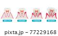 歯周病の進行 医療 77229168