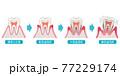 歯周病の進行 医療 77229174