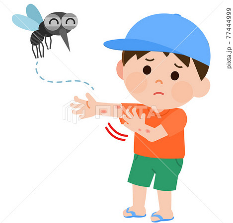 蚊に刺されて腕を掻く男の子 イラスト 77444999
