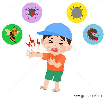 危険な害虫にさされて泣く男の子 イラスト 77445001