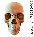 頭蓋骨の模型画像 78059609