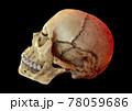 頭蓋骨の模型画像 78059686