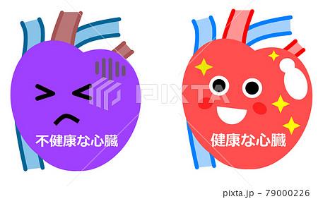 健康な心臓と不健康な心臓のイラスト 79000226