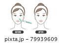 ほうれい線 治療(シンプル) 79939609