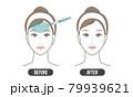 しわ 治療(シンプル) 79939621