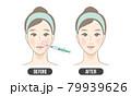 ほうれい線 治療(カラー) 79939626