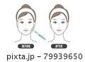 エラ ボトックス(シンプル) 79939650