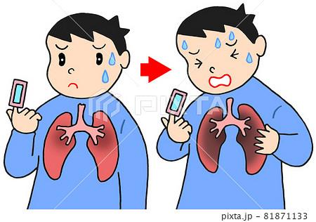 肺炎の初期症状・重症化 81871133