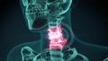 3d rendered illustration of a painful neck.medical 29330543