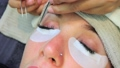 Woman giving Matsuek (right eye treatment) 38516885
