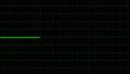 心電図 48165992