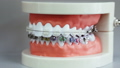 Human jaw model with different types of braces 48463174