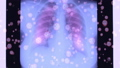 Lungs radiography affected by coronavirus 74468417