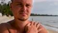 Adult man touch heat skin burn on shoulder 76355158