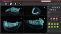 Human xray tooth and scan software interface 76479819